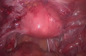 Abdominal Adhesions Causes Saad Amer Massive Adhesions